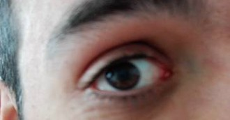 Cuidado con el Glaucoma,